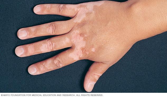 Vitiligo causes and treatment