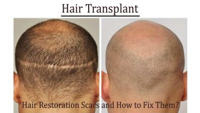 hair transplant- Hair Restoration Scars and How to Fix Them?