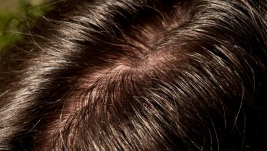 Scalp Acne and Oily Hair Issues