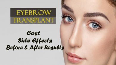 eyebrow transplant- cost, side-effects and before and after results